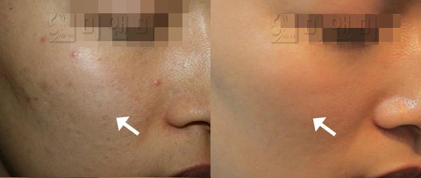 울퉁붕툴한 피부결 개선
